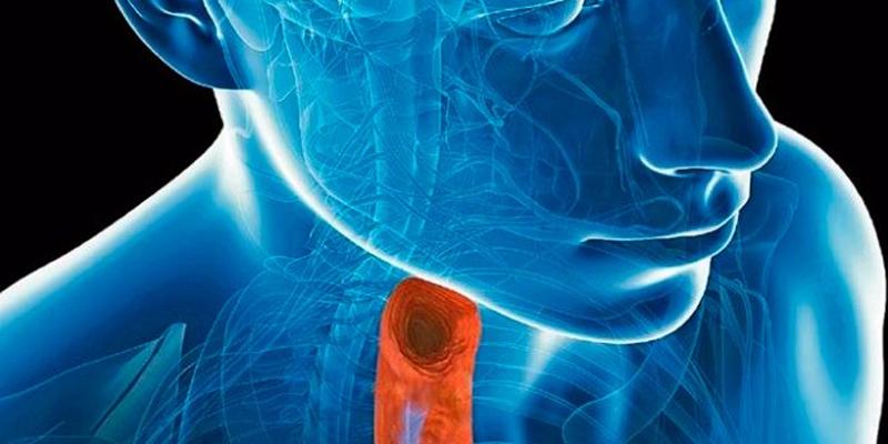 ¿Qué es la esofagitis?