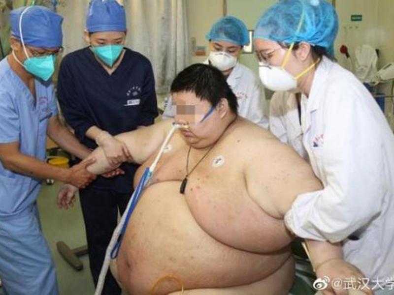 Un joven engordó 100 kilos durante el confinamiento
