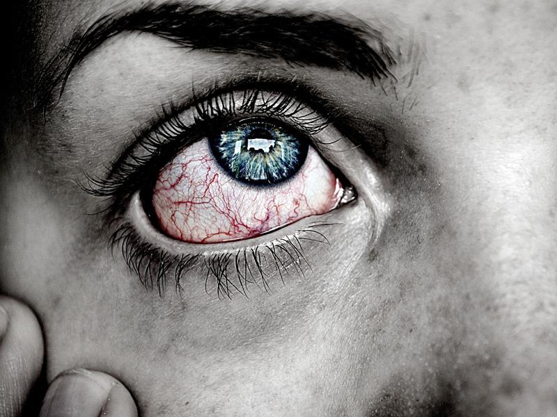 La conjuntivitis y sus síntomas