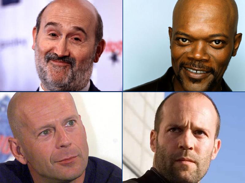 La alopecia y sus causas