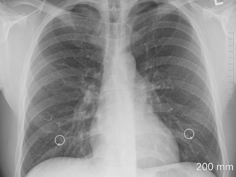 Un ecógrafo pulmonar para la detección precoz del Covid-19