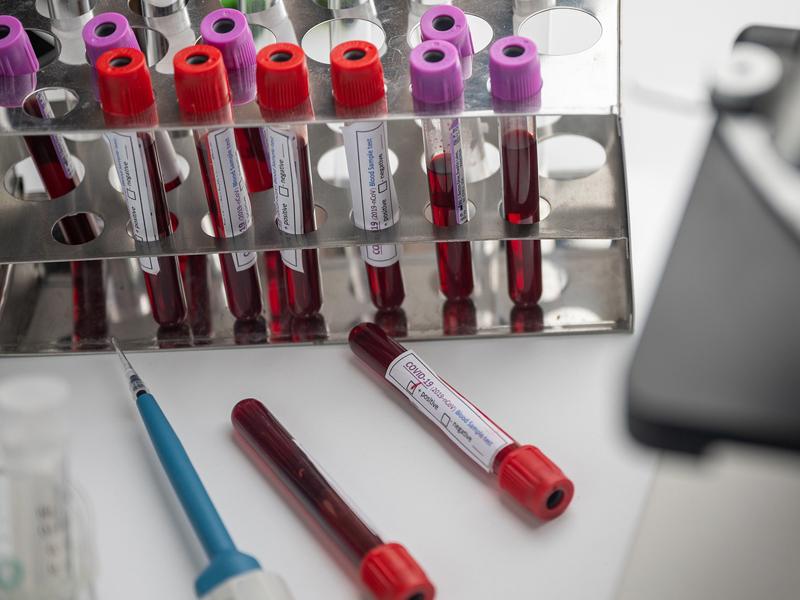 ¿Qué pasa si no llega la vacuna?