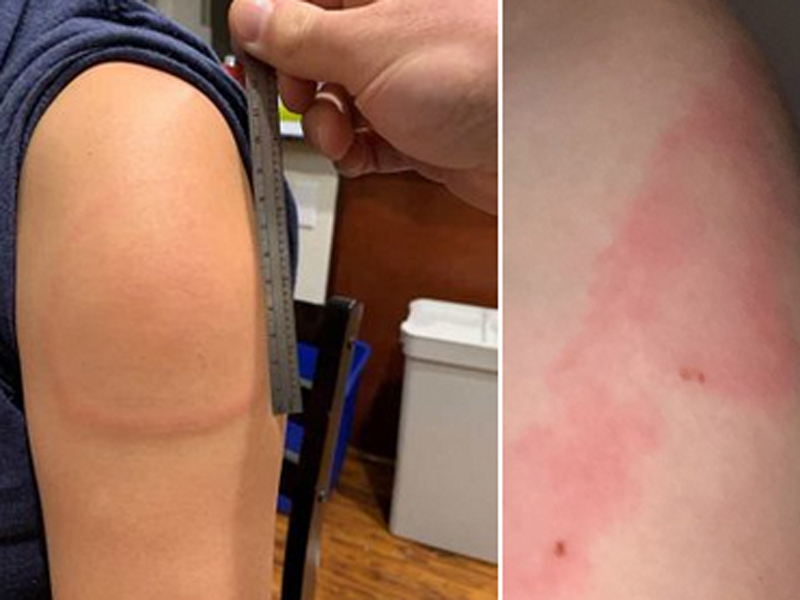 El brazo Covid es otro efecto secundario de la vacuna Moderna