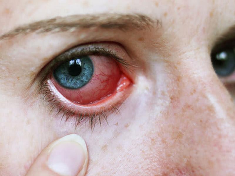 El coronavirus puede provocar uveítis ocular